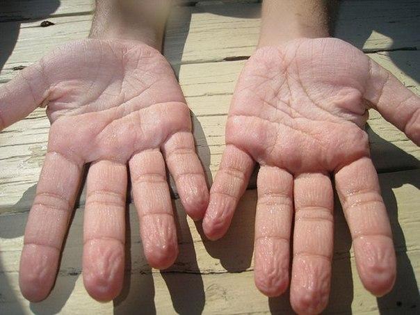 Мацерация кожи на пальцах