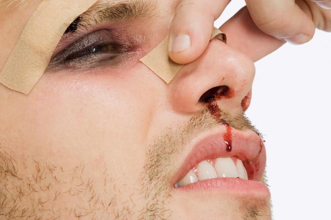 Если сломан нос что делать в домашних условиях